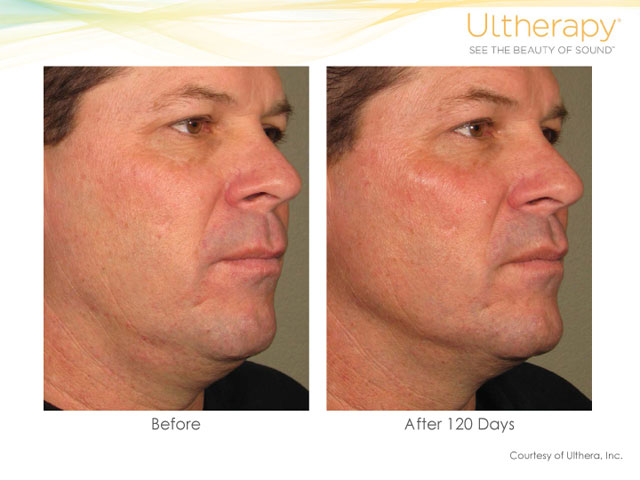 Ultherapy Neck and Eye Lift
