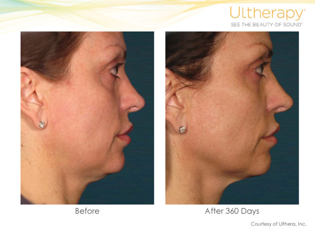 Ultherapy Neck Lift